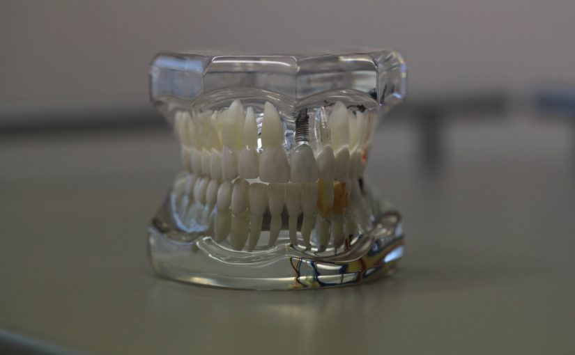 Zła droga żywienia się to większe niedobory w zębach oraz dodatkowo ich utratę